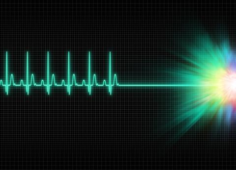 cardiac-monitar