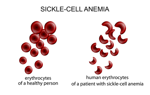 Understanding Anemia -- the Basics